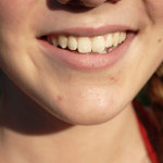 Who To Seek Out For Bruxism