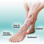Reasons Why the Peripheral Neuropathy Solutions Is the Leading Treatment Program for Chronic Pains